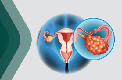 Çikolata kisti (Endometriozis) nedir